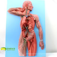 HEART13(12489 Human Lymphatic System Model for Hospital Patient Communication