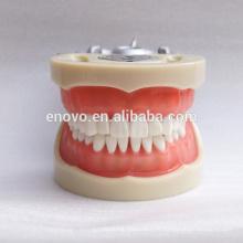 Chine Modèle dentaire anatomique 13012 de mâchoire dentaire modèle standard anatomique de la gomme molle modèle 3212