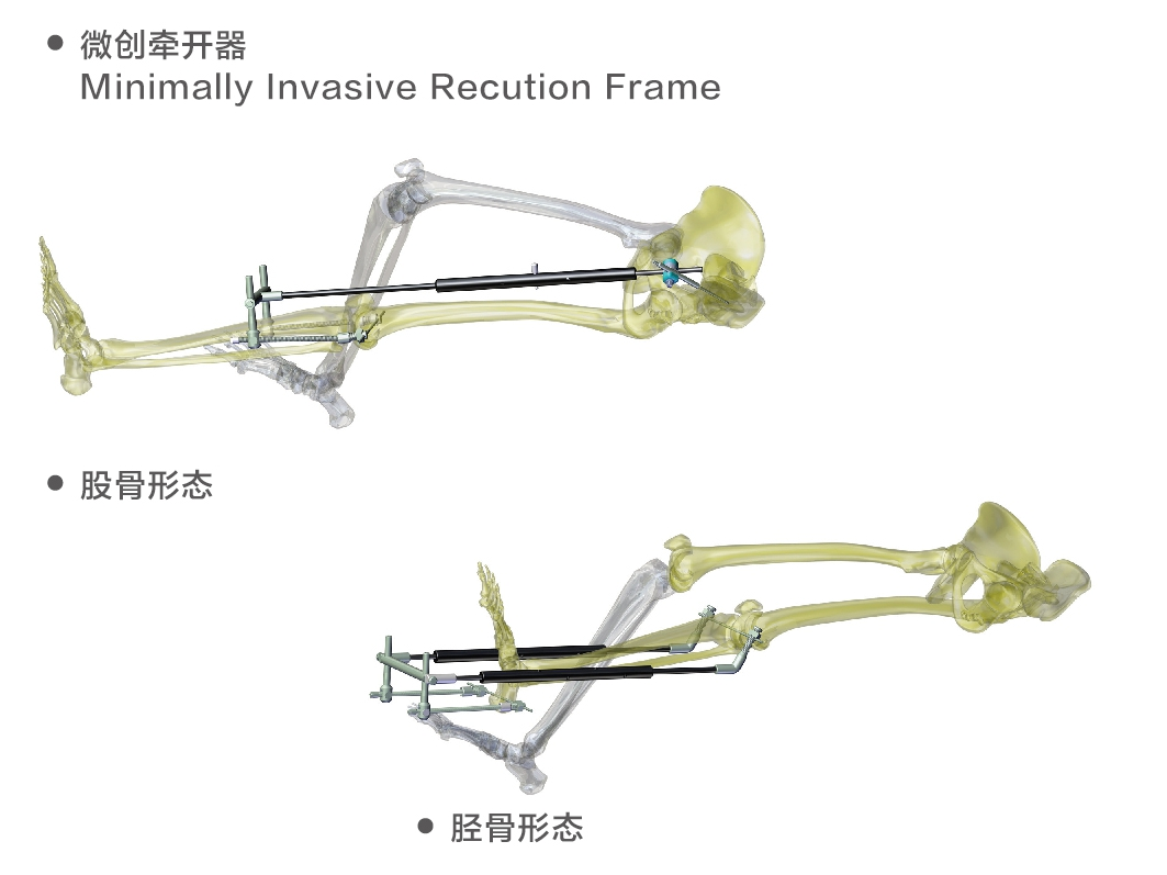 minimally invasive traction frame for limbs
