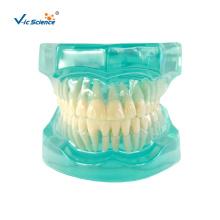 Clear Metal Ceramic Dental Orthodontic Model
