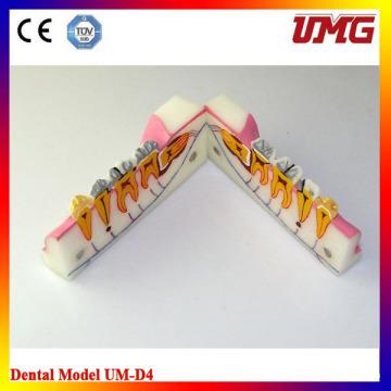Health Teeth Material Sagitally Sectioneg Model