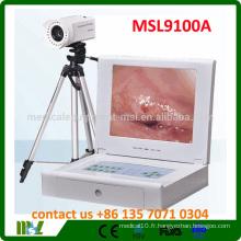 MSL9100A Le colposcope vidéo Protable le plus bas fabriqué en Chine