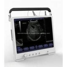 Preço portátil da máquina do ultra-som de Digitas do varredor do ultra-som