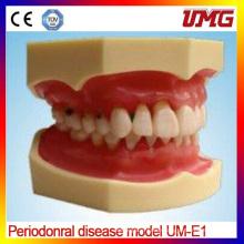 China Dental Supplies Periodonral Disease Model