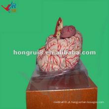 Modelo de Artéria Cerebral Avançada ISO, Modelo de Anatomia do Cérebro Humano