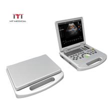 High Configuration 3D 4D Color Doppler Laptop Portable Cardiac Ultrasound Machine