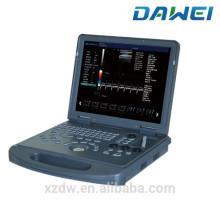 Portable Affordable 2D Color Doppler Echo Ultrasound Machine for Sale