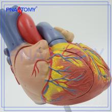 PNT-0405 tipo de modelo de simulação médica e modelo de anatomia humana de plástico / Modelo do Coração