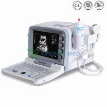 Ysb2000g Full Digital Portable Ultrasound Machine