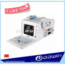 machine d'ultrason portative la meilleur marché et scanner d'ultrason de bw pour l'obstétrique, gynécologie