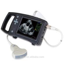DW-S650 échographe portable vétérinaire, échographie de grossesse de vache