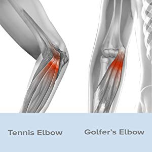 golfers/tennis elbow