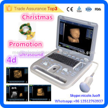 Promotion de Noël! CU18-I New Advanced 4D Portable Ultrasound Machine Price