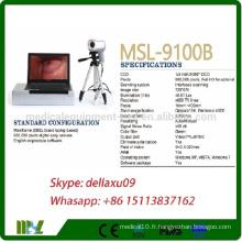 MSL9100B-A Colposcope électronique numérique le moins cher avec la marque Dell Colposcope portable / vidéo pour le vagin