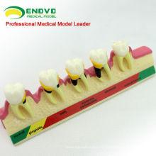 TOOTH09 (12585) Modèles de maladies parodontales chroniques