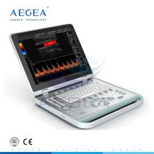 AG-BU005 Sistema de ultrasonido Doppler de color para notebooks avanzado y conveniente para el hospital