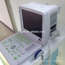 portable medical ultrasound diagnostic equipment & ultrasound body scanner & ultrasound with pesudo color DW360