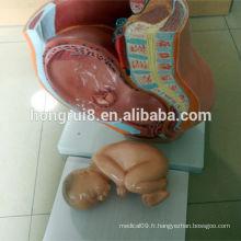ISO Section médiane du modèle Pelvis féminin, Anatomie du pélvis
