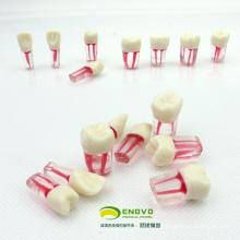 VENDRE 12577 Dent Endodontique Endolorée Modèle de Dent 8pcs / set Endo dents