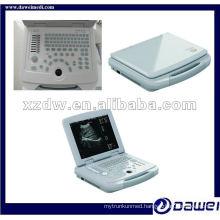 China laptop human ultrasound scanner system gynecological kit(DW500)