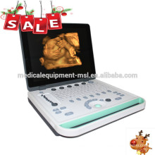 Machine à ultrasons portable 3d / machine usg portable / ordinateur portable à ultrasons MSLPU34A