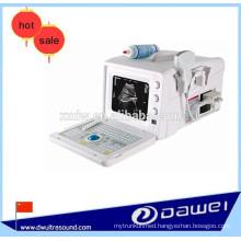 portable ultrasonic diagnostic scanner & medical ultrasound equipment