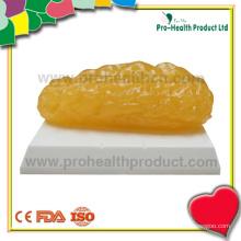 Modèle de graisse anotomique de 2 lb