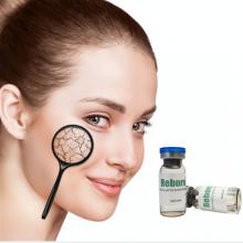 Solución de mesoterapia de hidrogel de ácido poli-L-láctico Reborn