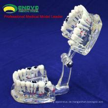 DENTAL09 (12568) Menschlichen Erwachsenen Größe Transparent Disease Oral Modell