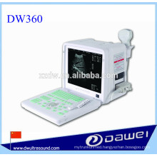 medical equipment ultrasound machine&portable ultrasound monitor DW360