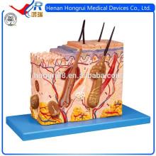 Estrutura da pele ISO modelo amplificado, modelo de anatomia da pele
