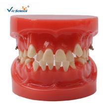 Modèle dentaire orthodontique