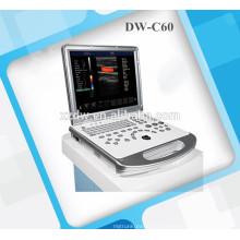 Scanner de ultra-som 3D e ultra-som doppler colorido de cor DW-C60