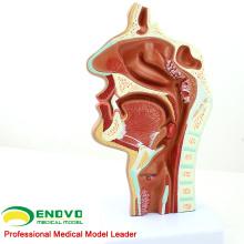 THROAT04 (12508) Modèle de section de cavité nasale de pathologie, taille normale, modèles d'oeil-oeil-nez-gorge> Modèles de cavité nasale