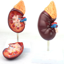 KIDNEY05 (12434) Normal Kidney 2 Partie 1.5 temps Agrandir Vie Taille Anatomie médicale Urinaire