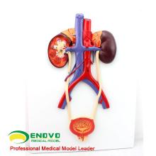 UROLOGY02(12422) мочеполовой системы человека, на борту, модели Анатомия > Медицина Анатомия мочевыделительной моделей
