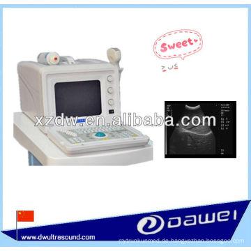 Portable B-Typ Medical Ultround Scanner zu verkaufen