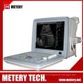 Scanner ultra-sônico de ultra-som digital