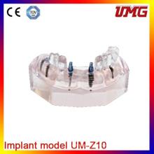 Dental Model Permanent Teeth Model and Hot Sale Teeth Models