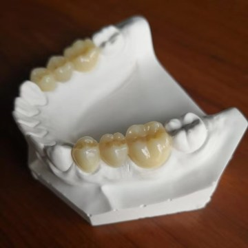 Fresadora dental de 5 ejes