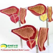 VENDER 12427 Modelo Patológico de Próstata Humana para Educação, Modelo de Exame da Próstata BPH