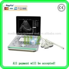 Échographie ultramoderne avec ordinateur portable avec sonde rectale MSLPU24A