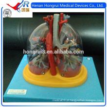 ISO Pulmões transparentes, traquéia, árvore bronquial com modelo cardíaco
