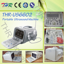 Portable Digital 3D B/W Ultrasound Scanner (THR-US6602)