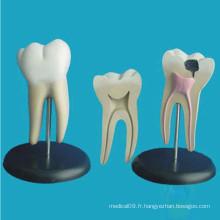 Modèle anatomique anatomique des dents molaires pathologiques humaines (R080103)