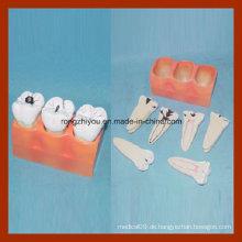 Dental Study Canies Zerlegung Zahn Modell
