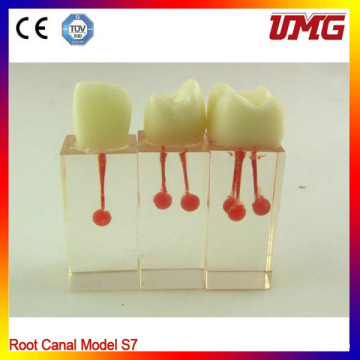 Import Resin Teeth Root Canal Model