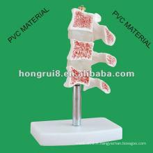 Lésions typiques du modèle de la colonne vertébrale ------- Ostéoporose coupante