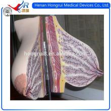 Modèle anatomique des seins ISO pour l'affichage des glandes mammaires en lactation