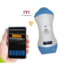 Double Head wireless linear probe ultrasound convex micro convex ultrasound probe for Iphone/Android/Ipad/PC